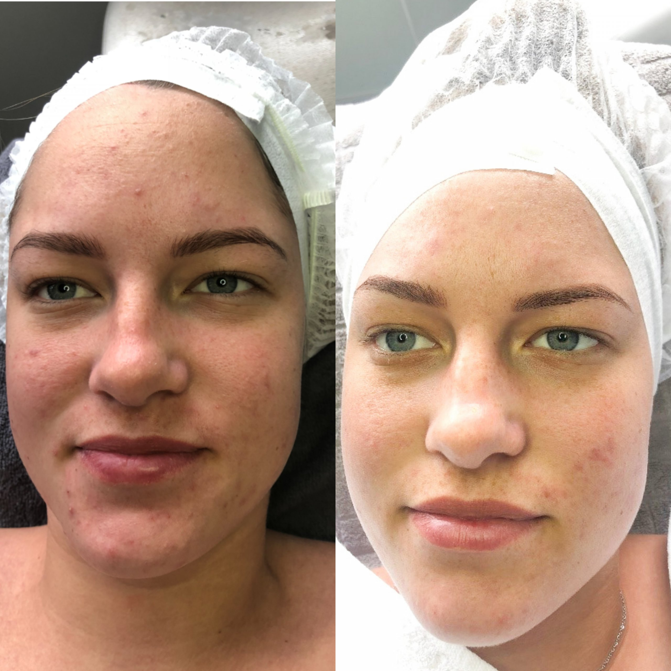 Cleaned Skin